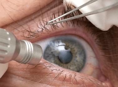 фото отслоение сетчатки глаза