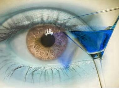 Можно ли пить при псориазе алкоголь - как спиртное влияет на заболевание